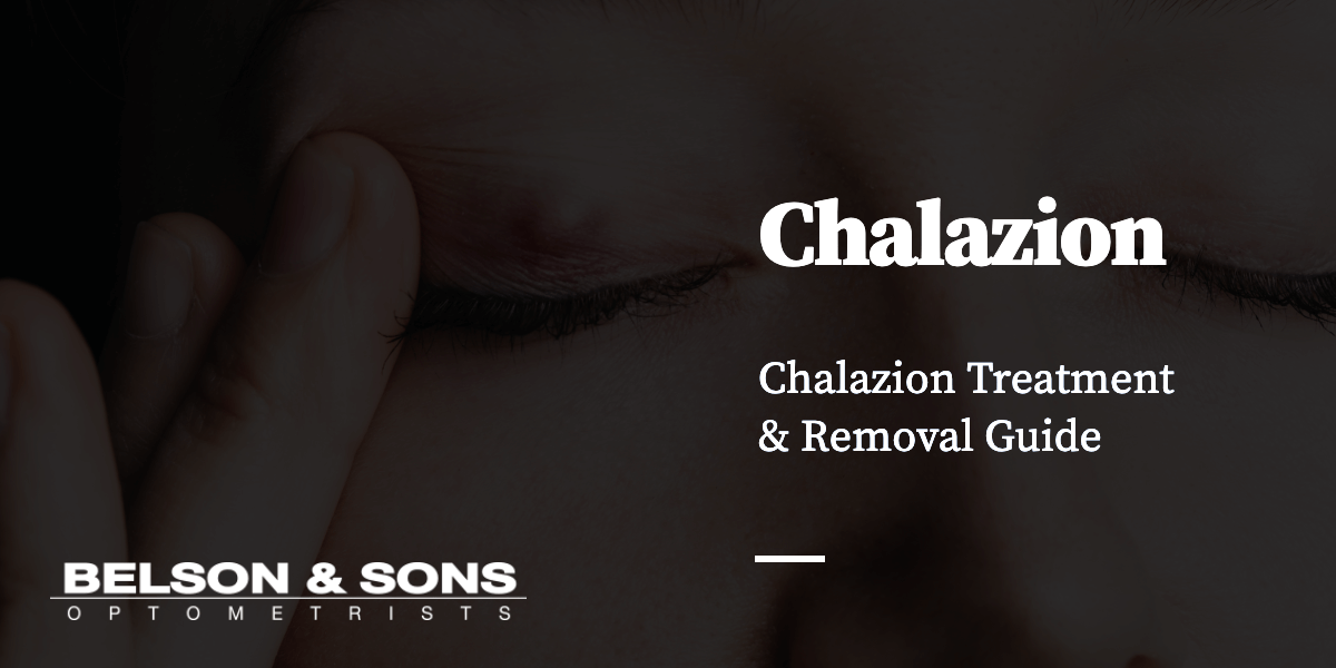 Chalazion Treatment & Removal Guide