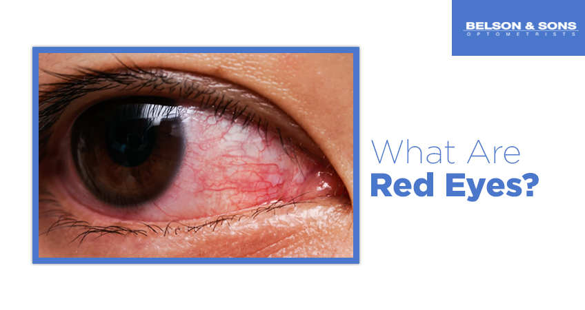 What Are Red Eyes?