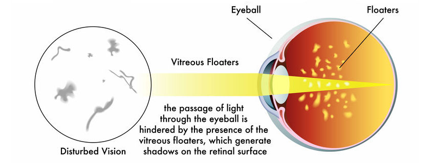 Causes of Eye Floaters