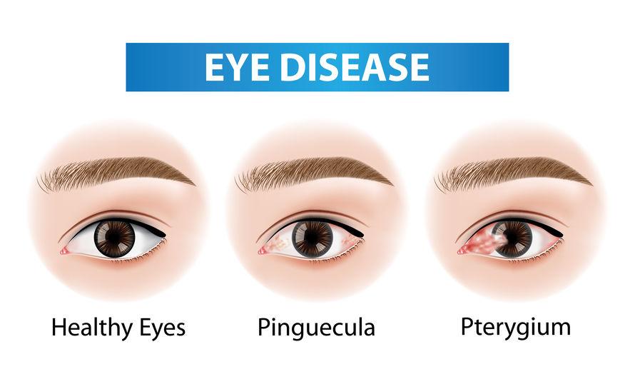 symptoms of pinguecula