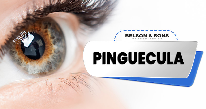 Pinguecula: Symptoms, Causes & Treatment