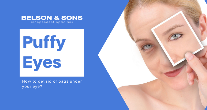 puffy eyes How to get rid of bags under your eye