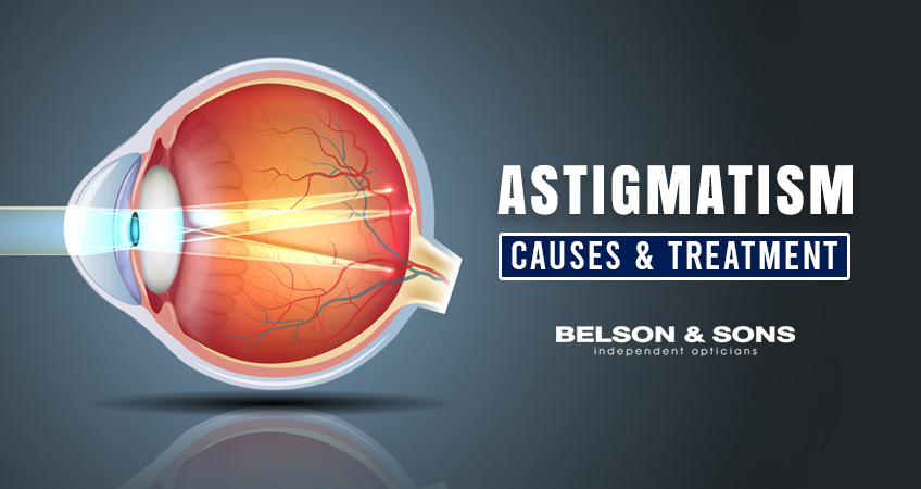What is Astigmatism and How Can it Be Treated