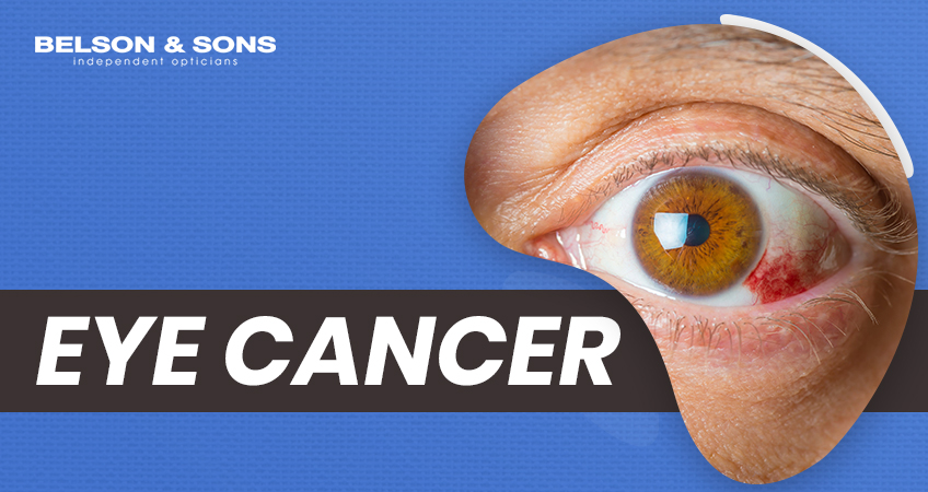 Eye Cancer – Symptoms and Treatment