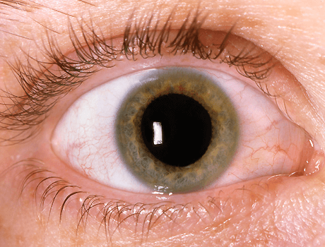 pupil dilation with eye drops